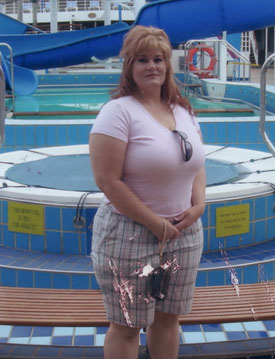 Kym's Story and How the Lap Band Changed Her Life