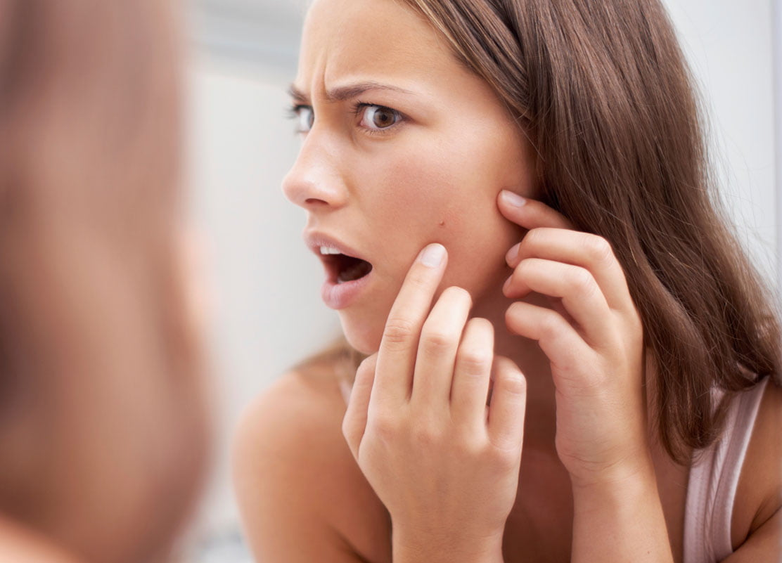 are-hair-follicles-to-blame-what-causes-acne.jpg