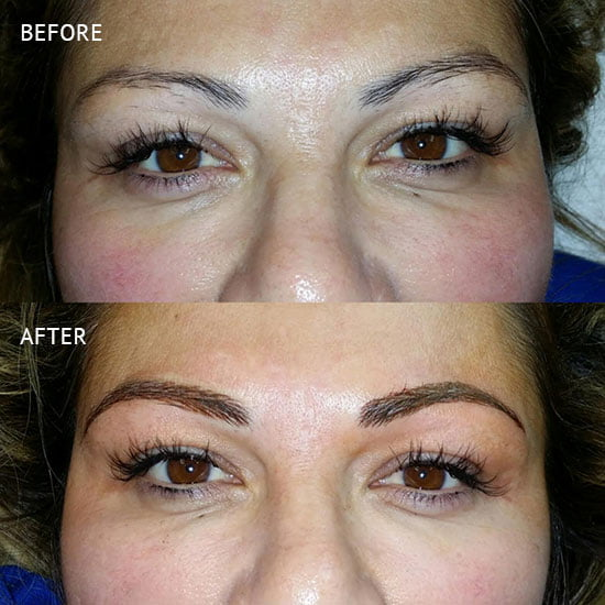 Microblading in Rancho Cucamonga | Inland Cosmetic Surgery