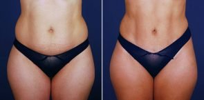 Tummy Tuck with VASER Liposuction