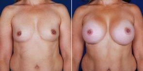 breast-augmentation-01a-haiavy