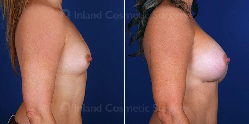 breast-augmentation-01c-haiavy