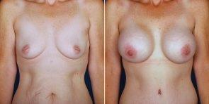 breast-augmentation-14020a-haiavy