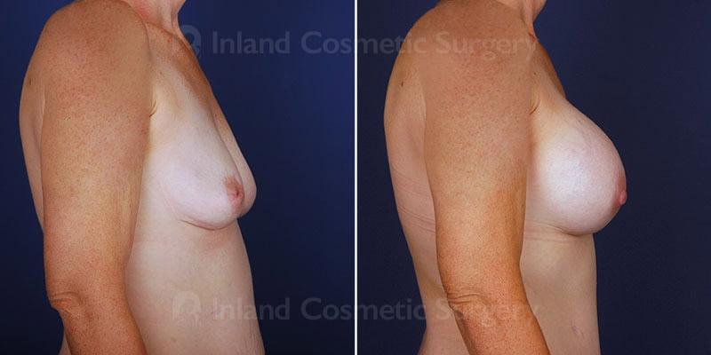 breast-augmentation-14020c-haiavy
