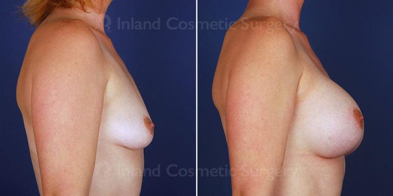 breast-augmentation-14041c-haiavy