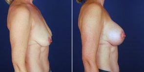 breast-augmentation-14096c-haiavy