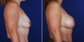 breast-lift-with-implants-14066c-haiavy