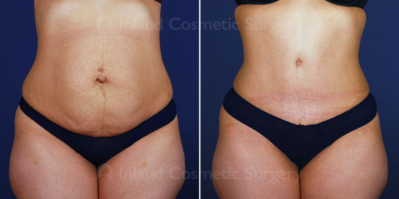 Tummy Tuck with Liposuction Patient