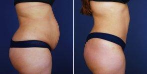 tummy-tuck-liposuction-hernia-repair-14051c-haiavy