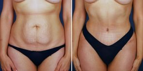Mini Tummy Tuck with VASER liposuction Patient