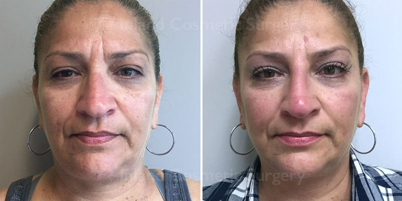 Non-Surgical Rhinoplasty Patient