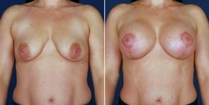 breast-augmentation-14523a-haiavy