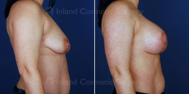 breast-augmentation-14523c-haiavy
