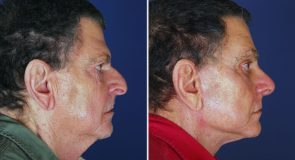 Facelift Patient with multiple procedures