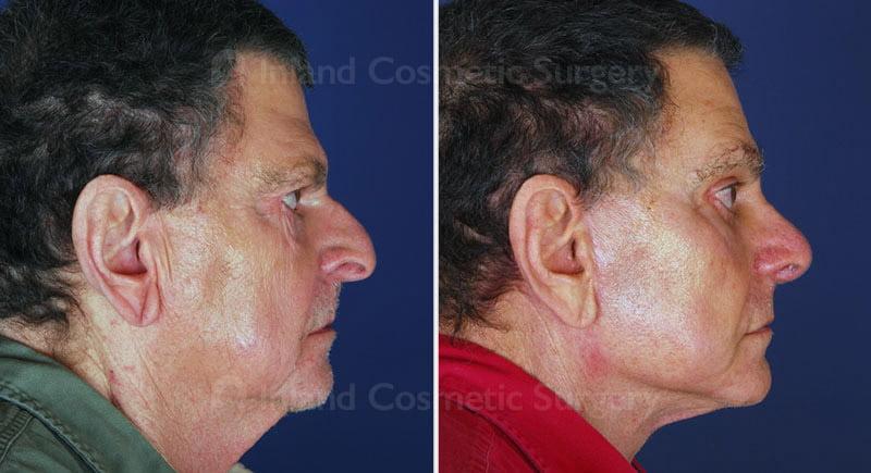 facelift-neck-rhino-eyes-brows-skin-14533c-inlandcs