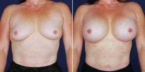 breast-augmentation-14885a-haiavy