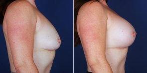breast-augmentation-14885c-haiavy