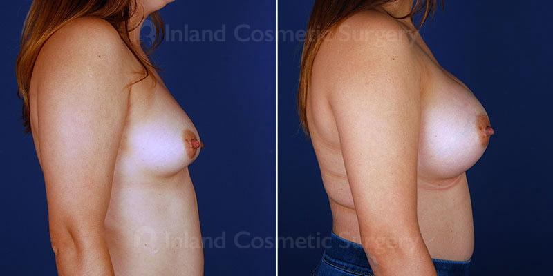 breast-augmentation-14891c-haiavy