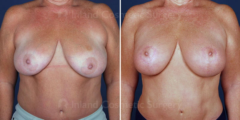 Breast Lift with Natural Augmentation Patient