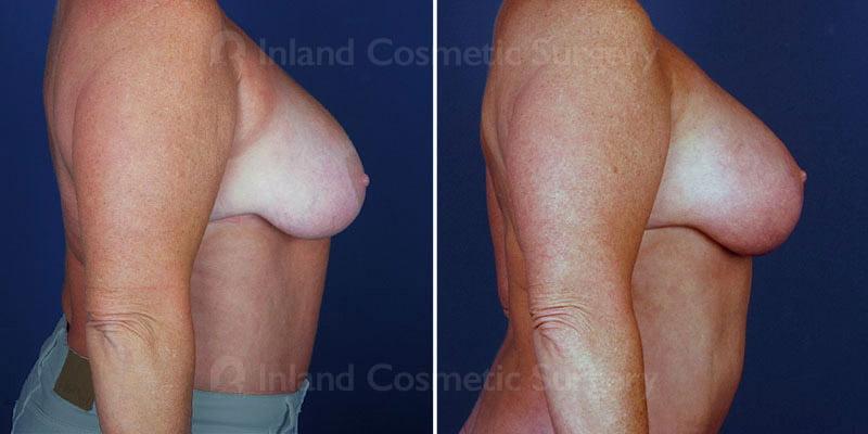 breast-lift-fat-grafting-14877c-haiavy