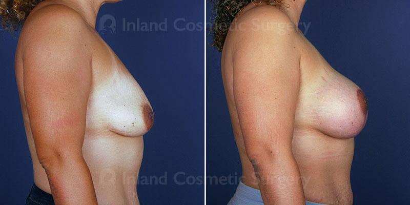 breast-lift-implants-114812c-haiavy