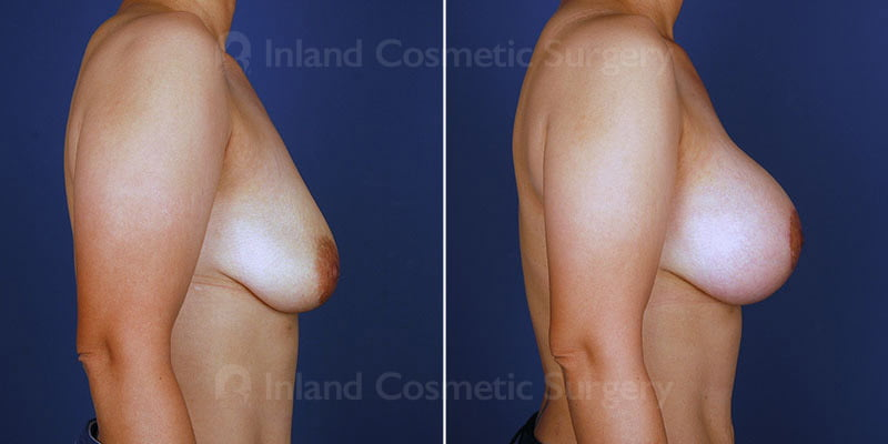 breast-lift-implants-14872c-haiavy