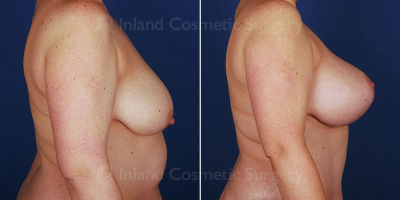 breast-reduction-with-augmentation-14832c-haiavy