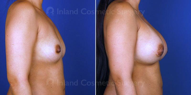 breast-augmentation-15006c-haiavy