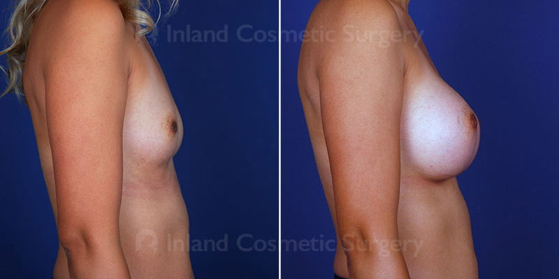 breast-augmentation-15058c-haiavy
