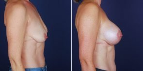 breast-lift-with-implants-14941c-haiavy