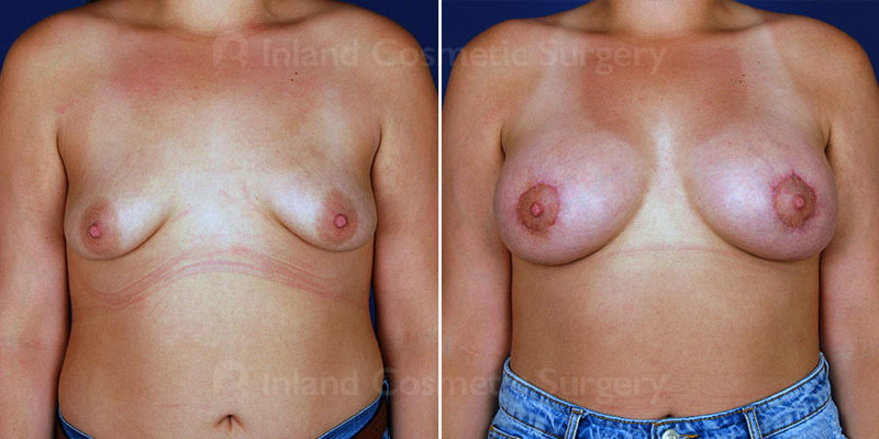 Breast Lift with Augmentation Patient