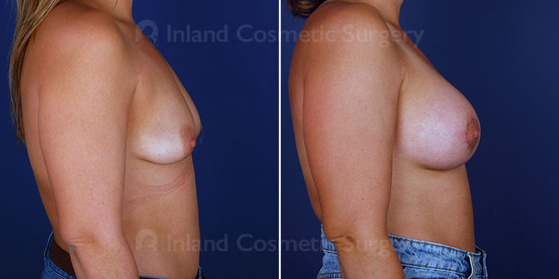 breast-lift-with-implants-14991c-haiavy