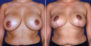 Breast Reduction with Lift Patient