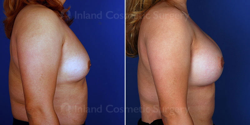 breast-augmentation-15072c-inlandcs