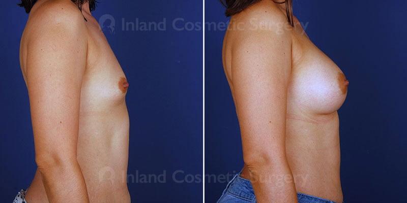 breast-augmentation-15143c-inlandcs