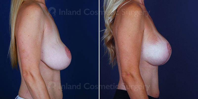 breast-implant-revision-15089c-inlandcs