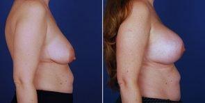 breast-lift-with-implants-15263c-inlandcs