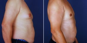 gynecomastia-15084c-inlandcs