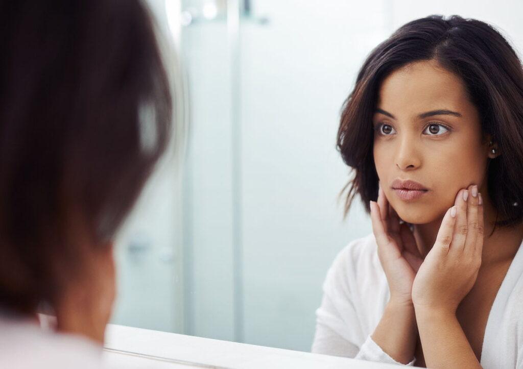 What is Acne Dysmorphia?