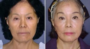 Browlift & Eyelid Surgery