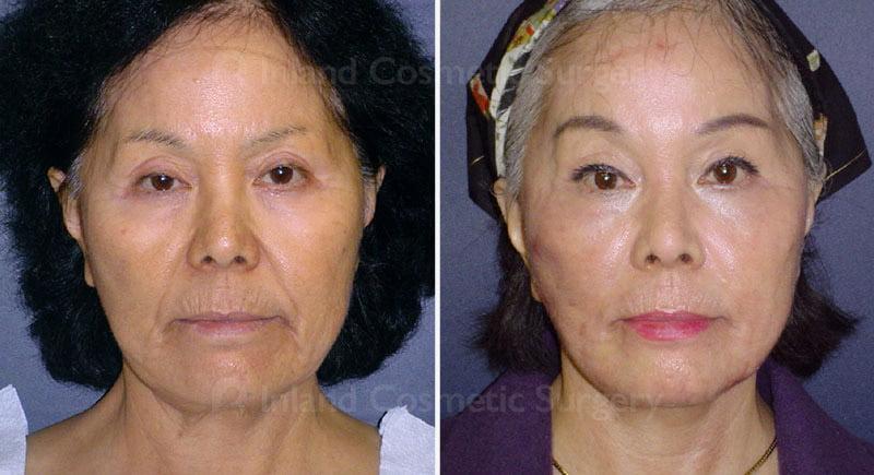 Browlift & Eyelid Surgery