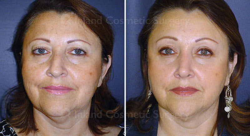 Rhinoplasty, Browlift, & Eyelid Surgery