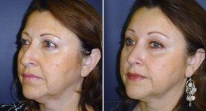 browlift-eyelids-rhinoplasty-15472b-inlandcs