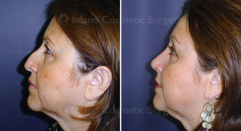 browlift-eyelids-rhinoplasty-15472c-inlandcs