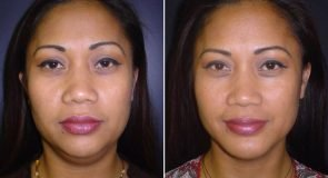 Chin Augmentation Patient 262