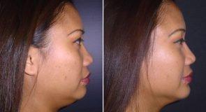 Chin Augmentation Patient 262