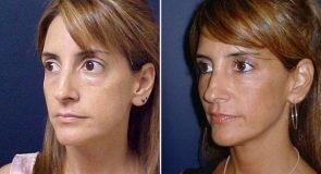 eyelids-fat-transfer-15465b-left-inlandcs