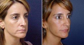eyelids-fat-transfer-15465b-right-inlandcs