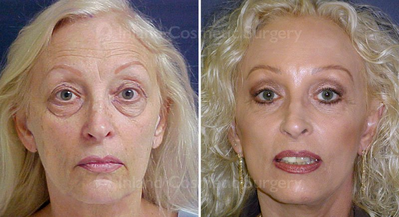 facelift-browlift-eyelids-15449-a-inlandcs