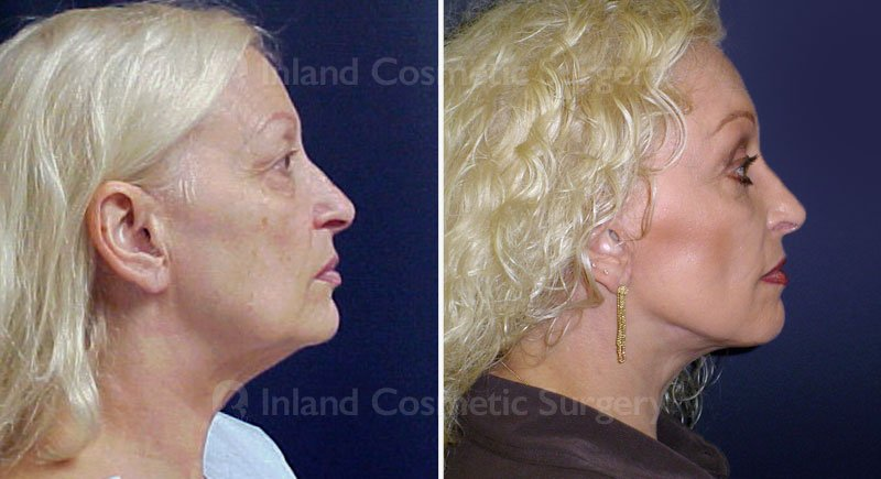 facelift-browlift-eyelids-15449-c-inlandcs
